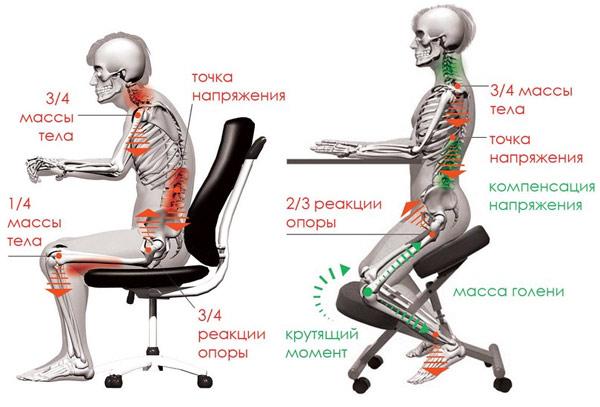 преимущества коленного стула